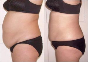 Belly and Buttocks to Burn Fat and Cellulite